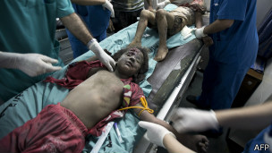 140712134804_gaza_wounded_child_304x171_afp